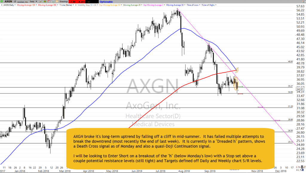 AXGN Chart Setup as of 10-8-18